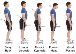 Several Types of Postural Deviations